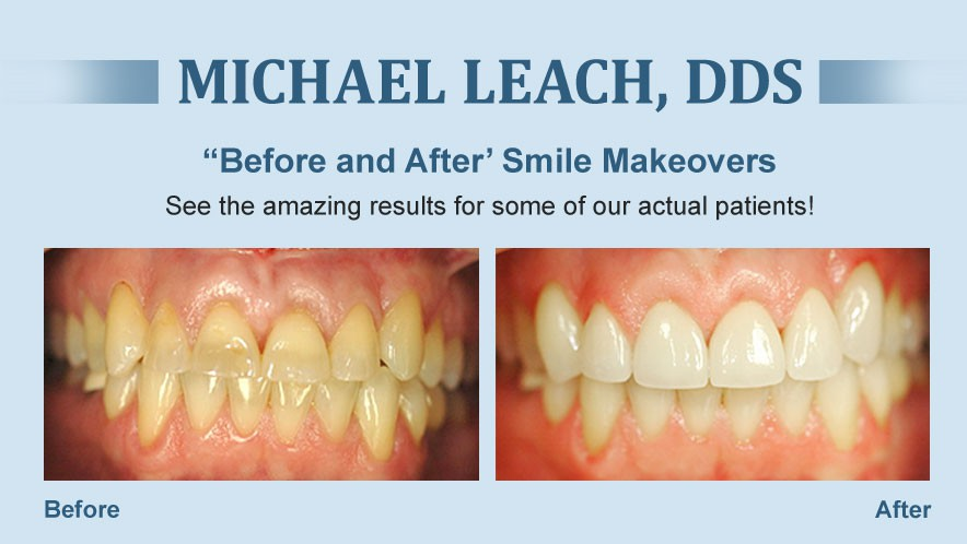 Smile Makeover Dentist Morristown Tn 37814 Cosmetic Restorative